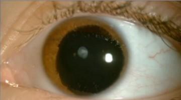 Aniridia eye (580x323)